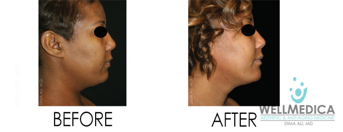 Venus Freeze Before And After For Face And Neck