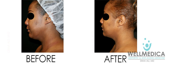 Venus Freeze Before And After Dr. Dima Ali, M.D.