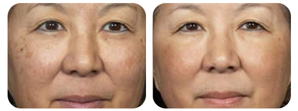 No Downtime Laser Peel